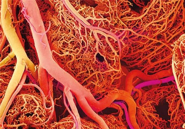 ساخت داربست گیاهی با امکان ایجاد عروق خونی در کشور