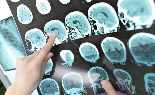 پایگاه داده نوار مغزی کمّی ایرانیان ایجاد میشود