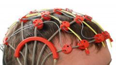 سیستم ثبت فعالیت الکتریکی غشایی از مغز در کشور ساخته میشود