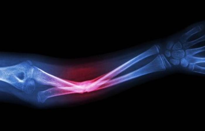 توسط پژوهشگران کشور ساخته شد: رباتی که استخوانهای بلند را جا میاندازد