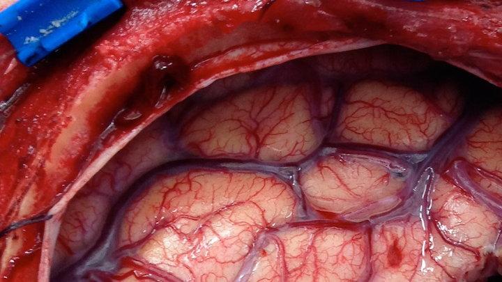 موفقیت تازه دانشمندان در ارتقای درمان سرطان مغز