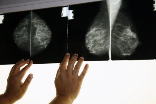 سن بروز سرطان پستان زنان ايراني ۱۵ سال کمتر از کشورهای غربی/ضرورت معاینه سالانه پستانها از ۴۰ سالگی
