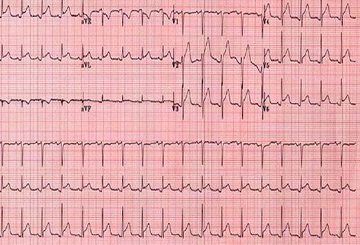دستاورد محققان «شریف»: نوار قلب خود را با تلفن همراه به پزشک ارسال کنید