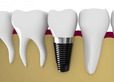 افزایش عمر ایمپلنتهای استخوانی و دندانی با نانوپلاسمای محققان کشور