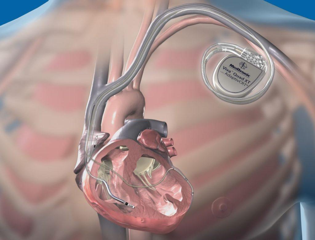 نصب ضربان ساز اپی کاردیال قلب به روش توراسکوپی برای نخستین بار در کشور