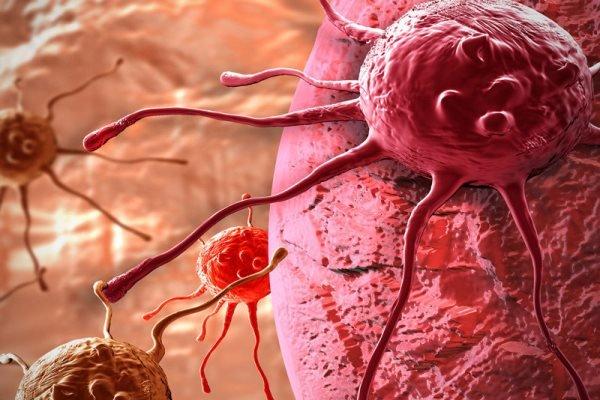 دستاورد محققان علوم پزشکی کشور در درمان مؤثرتر سرطان لوزالمعده
