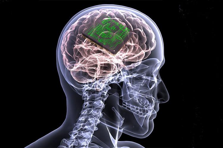 با جمایت ستاد علوم شناختی صورت می گیرد: تولید الکترودها و باتری سیستم تحریک عمقی مغزی در کشور