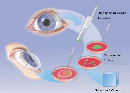 در پژوهشگاه رویان محقق شد: بهبود عمل پیوند لیمبال قرنیه با قطره چشمی عصاره غشاء آمنیوتیک