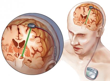 نخستین جراحی درمان وسواس در ایران انجام شد/تولید الکترودهای مغزی در ایران در مرحله آزمایش حیوانی