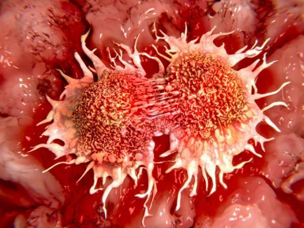تشخیص میزان پیشرفت سرطان با ابزاار الکترونیکی محققان کشور