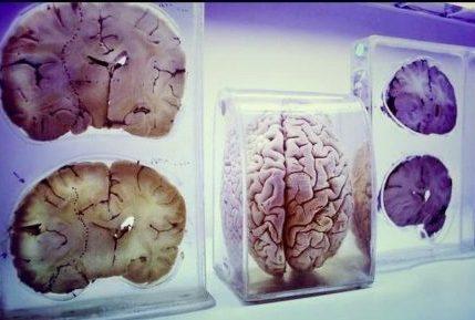 روشهای تحریک عمقی مغز، موضوع مدرسه تابستانه آزمایشگاه ملی مغز