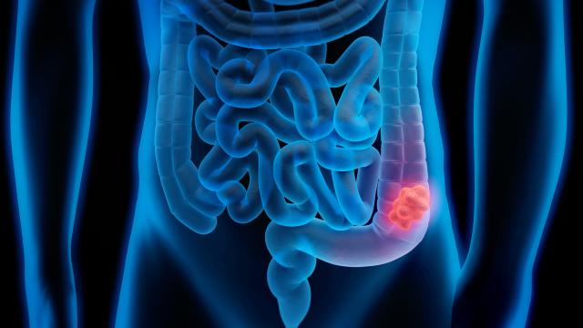 امیدهای تازه در تشخیص زودهنگام سرطان روده بزرگ با یافته های محققان ایرانی