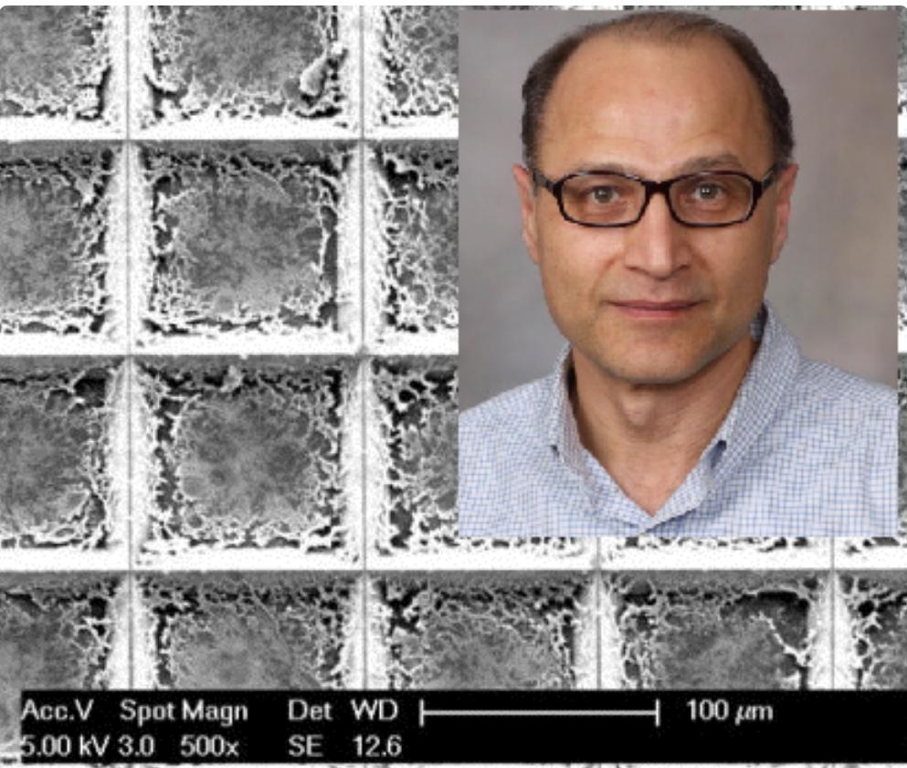 شناسایی سریعتر و دقیقتر تومورهای سرطانی با تراشه ابداعی دانشمند ایرانی
