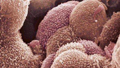 تشخیص زودهنگام سرطان تخمدان با آپتاحسگر محققان دانشگاهی