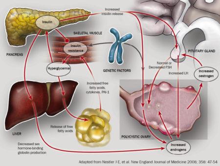 سندرم تخمدان پرکیست
