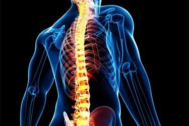 پیشبینی خطر شکستگی استخوان و مهرههای ستون فقرات با راهکار محققان دانشگاهی