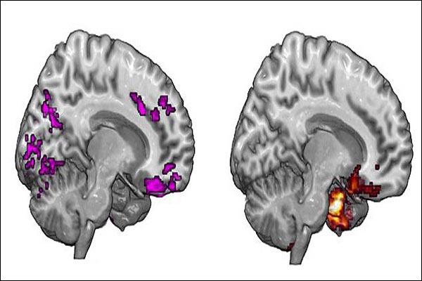 بازگشت عملکرد مدارهای نورونی افراد معتاد به حالت اولیه با طرح جدید محققان کشور