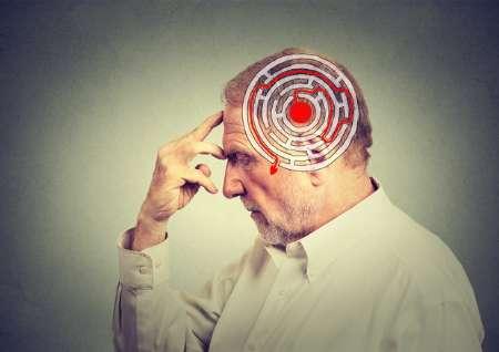 تشخیص به موقع آلزایمر با زیست حسگر ایرانی