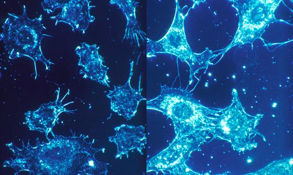 محققان ایرانی سلول های سرطانی را در جریان دارورسانی، تعقیب تصویری کردند