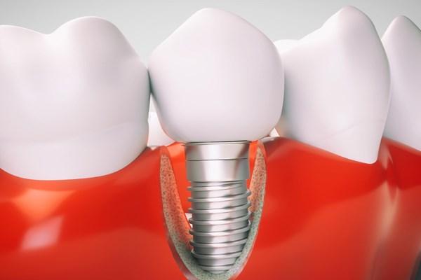 ساخت ایمپلنت دندانی بهینه از سوی محققان دانشگاه صنعتی امیرکبیر
