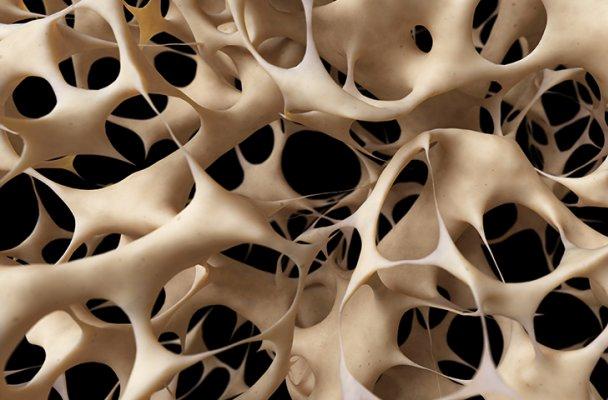 تولید نسل جدید ایمپلنتهای استخوانی در کشور