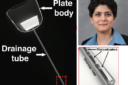 ابداع روشی موثر برای درمان «آب سیاه» چشم با همکاری دانشمند ایرانی