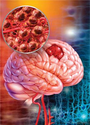 ابداع روشی نوین برای درمان تومورهای لاعلاج مغزی از سوی محققان ایرانی