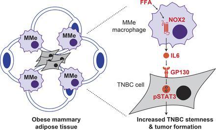 چاقی، سلول های ایمنی پستان را به تشکیل تومور سوق می دهد