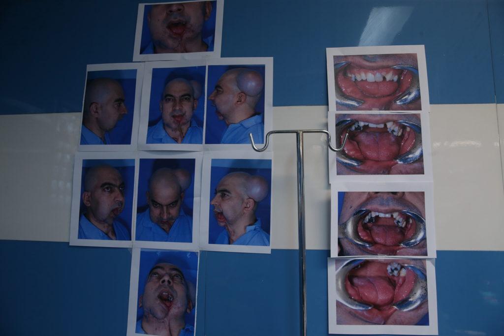 موفقیت جراحان ایرانی در بازسازی فک و صورت گلوله خورده
