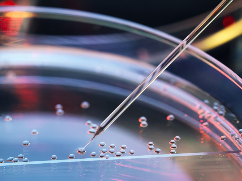 براساس یک کارآزمایی بالینی بینالمللی: سلولهای بنیادی مزانشیمی در بهبود عوارض ام.اس موثرند