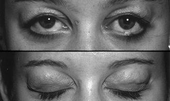 با تست ابداعی چشم پزشک ایرانی میسر شد: تشخیص افتادگی غده اشکی در افراد با پف پلک