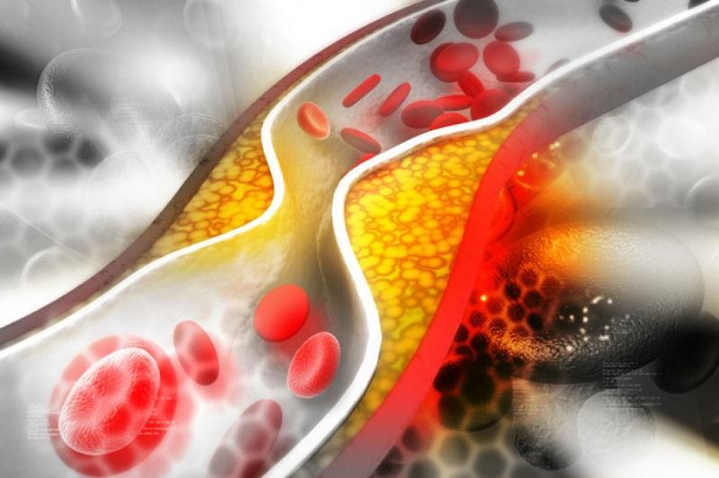 میزان «چربی خون» ایرانی ها اعلام شد/ «چربی خون بالا» در جهان تغییر مسیر داد !/ هشدار معاون وزیر بهداشت نسبت به نقش اساسی چربی خون بالا در ۵۰ هزار مرگ زودرس ایرانی ها