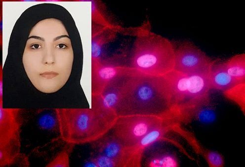 تشخیص غیرمخرب تودههای سرطانی بافت پستان با ماموگراف نوری محققان ایرانی