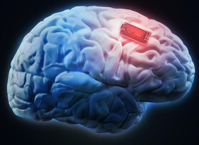 ایمپلنت مغزی با قابلیت تبدیل افکار به گفتار