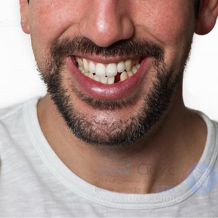 از دست دادن دندان ها، خطر ابتلا به زوال عقل و آلزایمر را افزایش می دهد