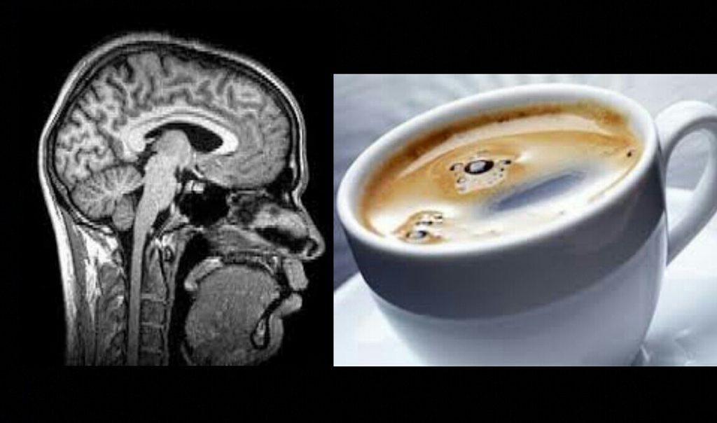 افزایش خطر زوال عقل با نوشیدن بیش از شش فنجان قهوه در روز