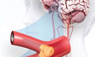 سن سکته مغزی در ایران ۱۰ سال کاهش یافته است